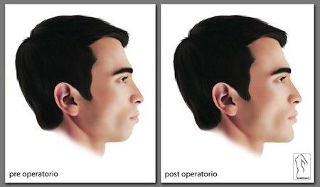 profiloplastica
