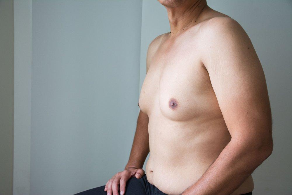 Ginecomastia (seno maschile)