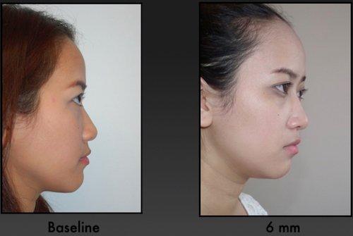 rinofiller rinoplastica non chirurgica 281019 1