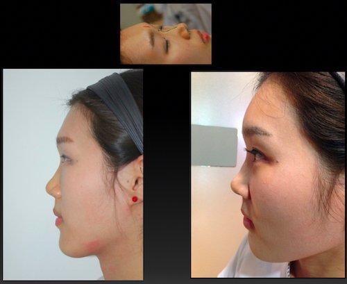 rinofiller rinoplastica non chirurgica 281019 2